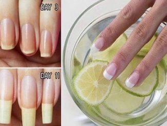 fortalecer uñas